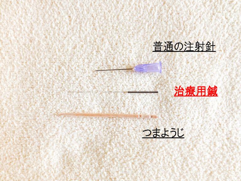 注射鍼と治療用鍼の太さ