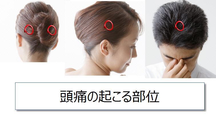 頭痛の起きる部位